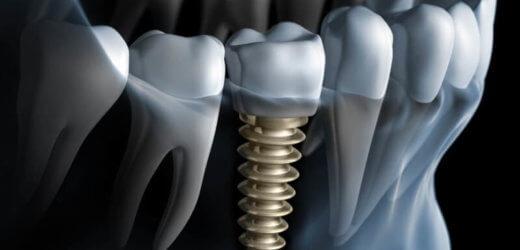 Implanty zębowe – kompendium wiedzy